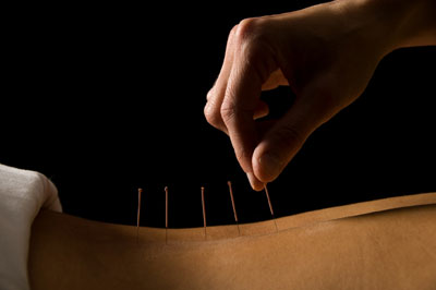 Twisting Acupuncture Needles