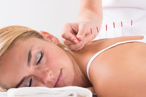 HPV Treatment with Acupuncture