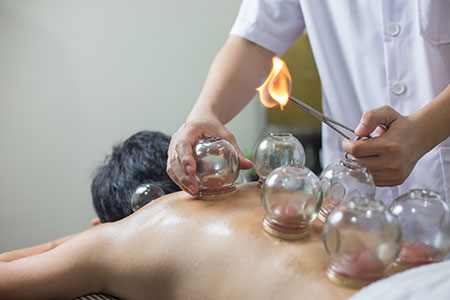 Fat Loss via Cupping Therapy
